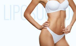 Liposuction Staten Island, Brooklyn, & Manhattan