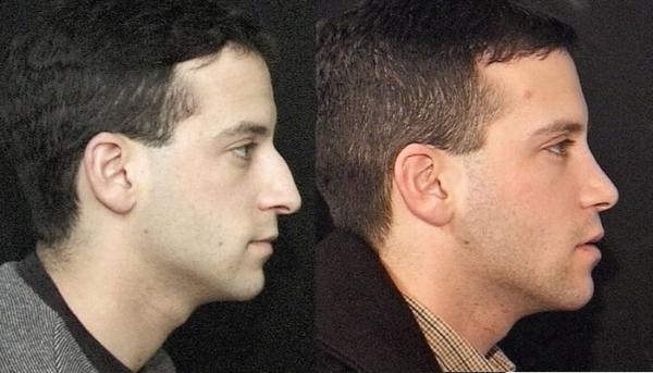 Male Rhinoplasty Before & After Staten Island & Brooklyn