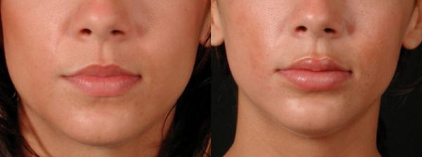 Permanent Lip Augmentation Staten Island