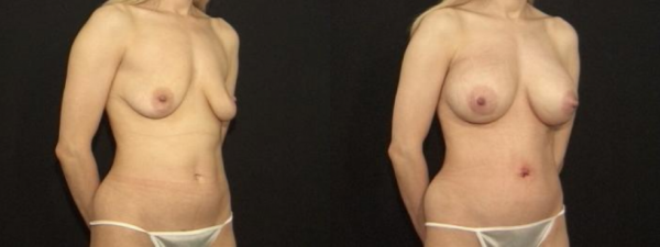Scarless Breast Lift Before & After Staten Island and Brooklyn