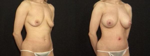 Scarless Breast Lift Staten Island