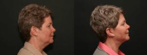 Neck Liposuction Staten Island