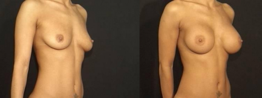 Breast Augmentation Before & After Staten Island & Brooklyn