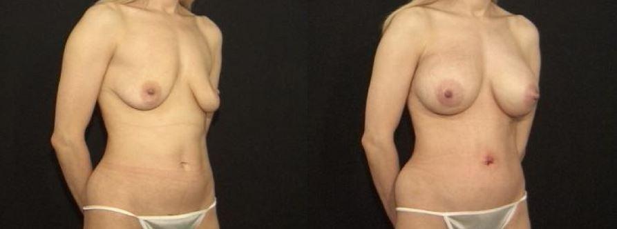 Scar Less Breast Lift Staten Island