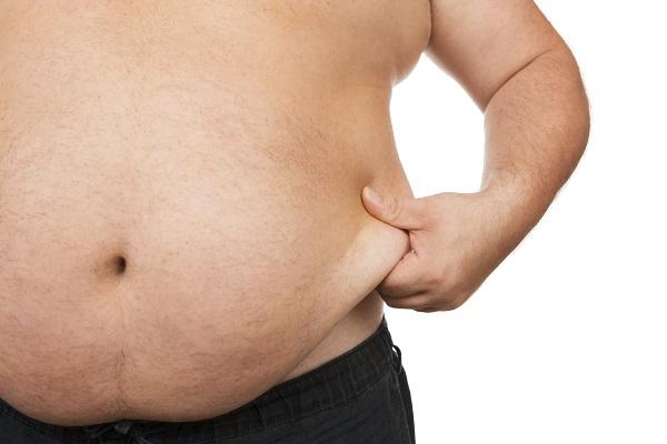 Liposuction Staten Island